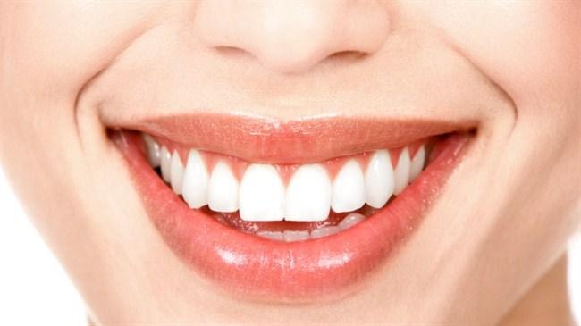 Tartar ağız sağlığını tehdit ediyor