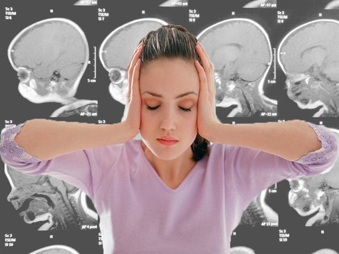 Beyin Tümörünün 6 Habercisi