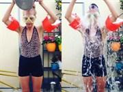 Meryem Uzerli'den ALS Kampanyasına Destek