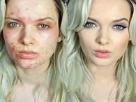 Makyajla Sivicelerine Veda Eden Kadınlar