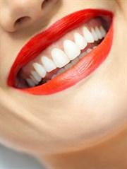 Diş Eti Enfeksiyonları Ciddi Sonuçlar  Doğurabilir!