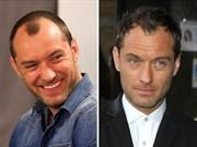 Saç Ektirdikleri Aşikar Olan 16 Ünlü Erkek