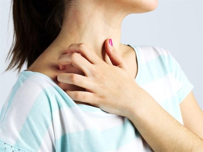 Sıcak Alerjileri Tedavi Edilebilir