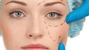 Göz Kapağı Estetiği İçin Uygun Aday mısınız?