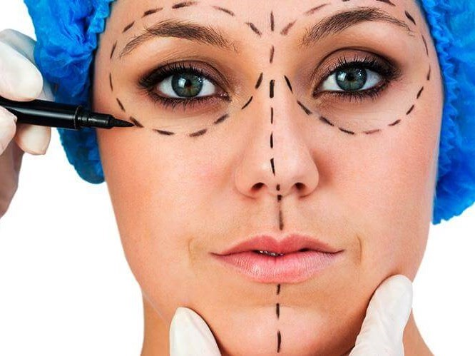 Göz Çevresinde Ameliyatsız Tedavi Yöntemleri