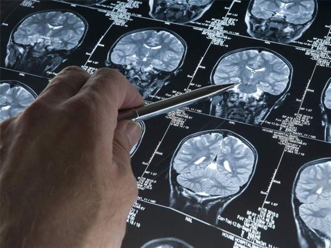 Epilepsi Nedir & Nasıl Tedavi Edilir?