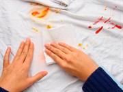 Pratik Bilgiler: Lekeler Nasıl Çıkar?