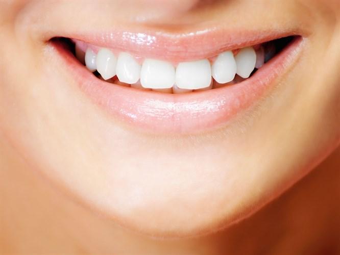 Bleaching Yöntemi İle Bembeyaz Dişler!