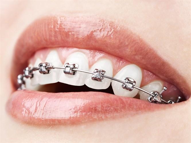 Sadece Birkaç Ay Süren Diş Teli Tedavisi: Fastbraces