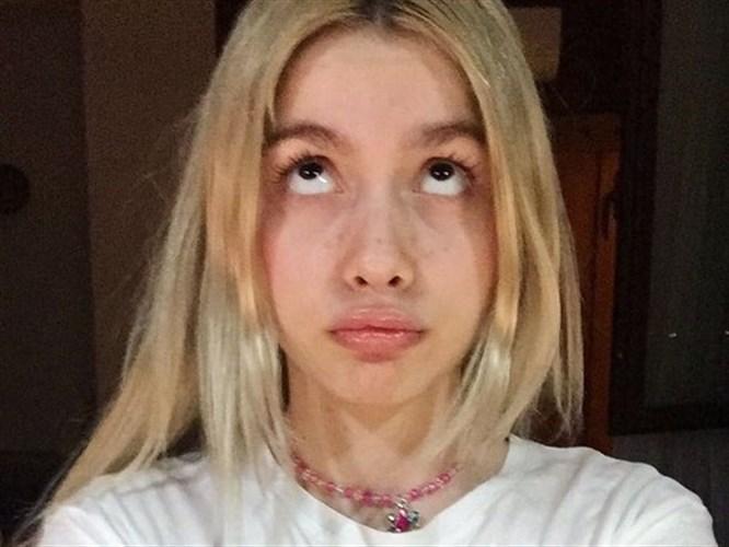 Aleyna Tilki Dudaklarına Dolgu Mu Yaptırdı?