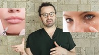 Instagram Filtresi Gibi Uygulama - Hyalüronik Asit