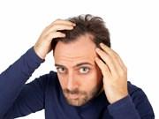 MikroFUE Tekniğiyle Saç Ekimi Nasıl Yapılır?
