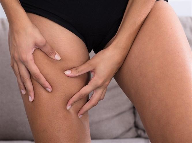 Bacaklarda Kalınlaşma (Lipodem) Neden Olur?